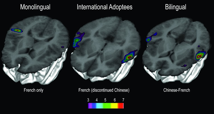 bilingual-brain-scan